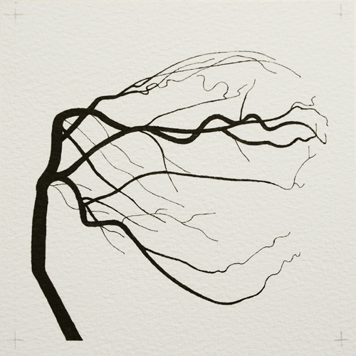 oona-culley-coronary-arterial-tree.01