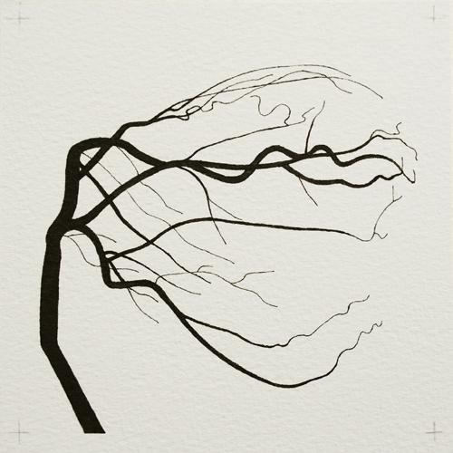 oona-culley-coronary-arterial-tree.01