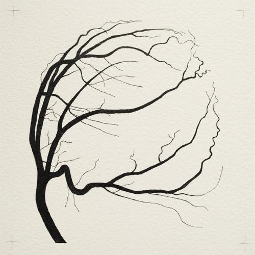 Coronary Trees 2014