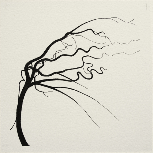 oona-culley-coronary-arterial-tree.03