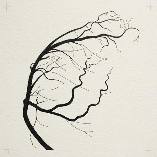 oona-culley-coronary-arterial-tree.04
