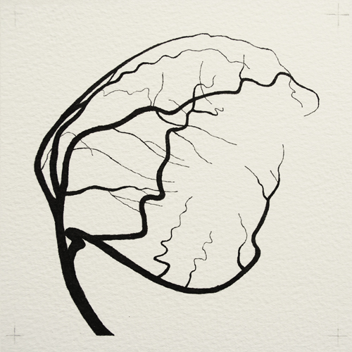 oona-culley-coronary-arterial-tree.05