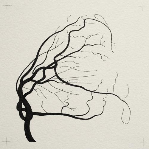 oona-culley-coronary-arterial-tree.08