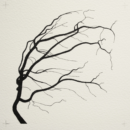 oona-culley-coronary-arterial-tree.09