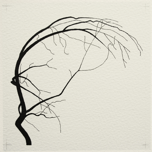 oona-culley-coronary-arterial-tree.10