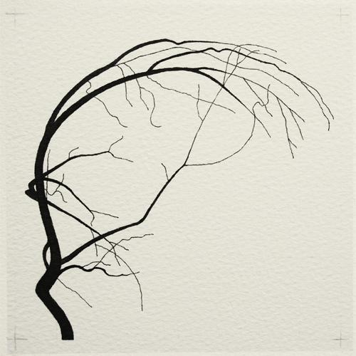 oona-culley-coronary-arterial-tree.10