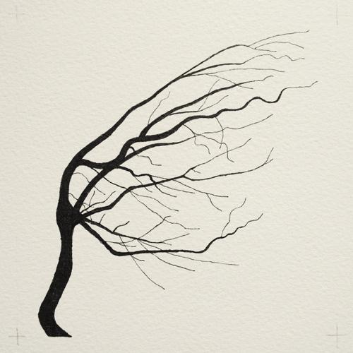 oona-culley-coronary-arterial-tree.11