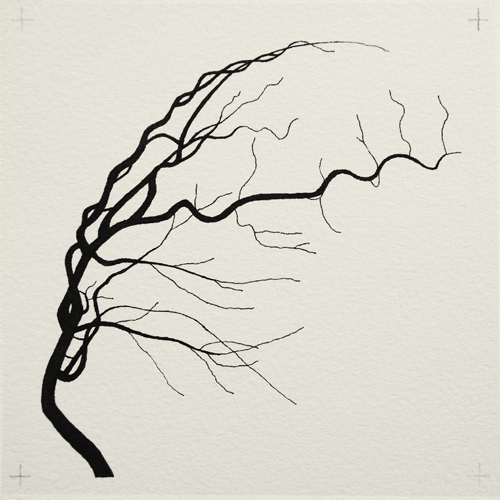 oona-culley-coronary-arterial-tree.12
