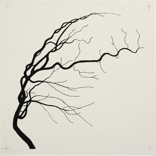 oona-culley-coronary-arterial-tree.12
